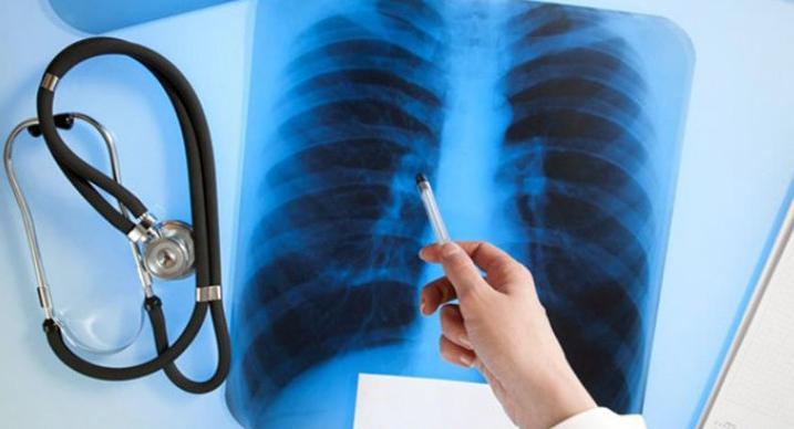 У сотрудницы одного из бердянских садиков выявлен туберкулез